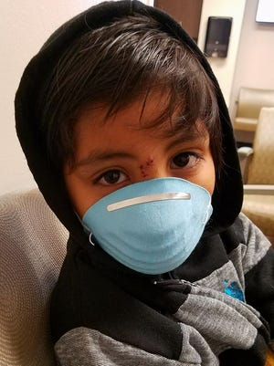 "Israel Costilla wears a surgical mask to hide his scars after being mauled by a pit bull named ""Trouble."""