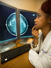 Mountainview Regional Medical Center Dr. Darwana Ratleff, obstetrician and gynecologist at MountainView Medical Group OBGYN Consultants in Las Cruces examines a digital X-ray of a breast.