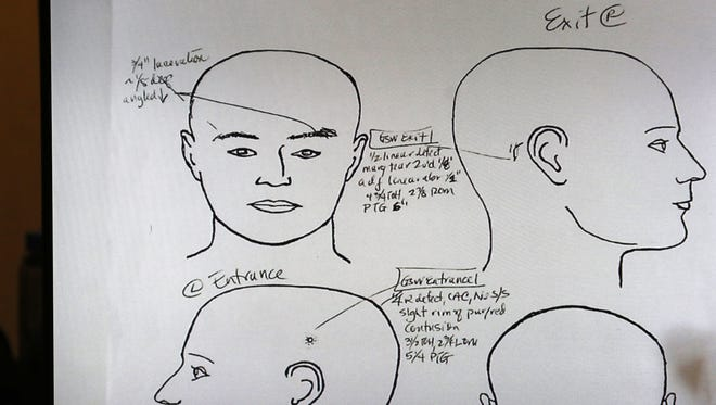 Mon., Nov. 7, 2016: Notations made by Hamilton County Deputy Coroner Dr. Karen Looman, showing the entrance and exit of the bullet that killed Sam DuBose. This is the fourth day of witness testimony in the murder trial of former University of Cincinnati police officer Ray Tensing.   Tensing is charged with murdering Sam DuBose during a routine traffic stop on July 19, 2015. Tensing's lawyer, Stew Mathews, has said Tensing fired a single shot because he feared for his life.