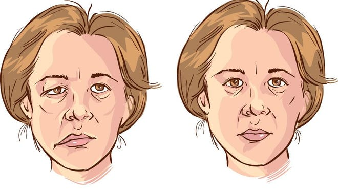 Bell's palsy is a neurological condition in which there is a dysfunction of the nerve that controls the muscles of the face.