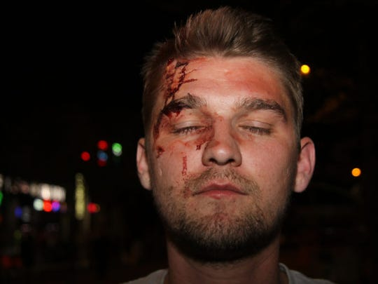 Thaddeus Pall was attacked in May 2017 in downtown Madison by a group of men he suspected were anti-fascists. The FBI has investigated the attack, which Pall said came after he and other Proud Boys members met at a Madison bar. No charges have been filed.