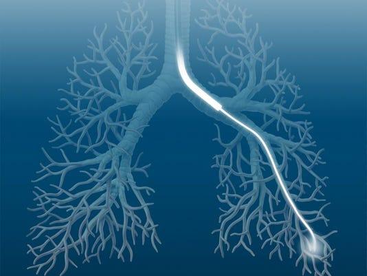 AnatomicLungBlue.jpg