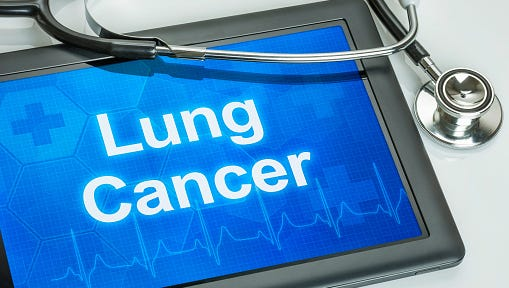 Lung cancer is by far the leading cause of cancer death among both men and women — about one in four cancer deaths are from this type of cancer.
