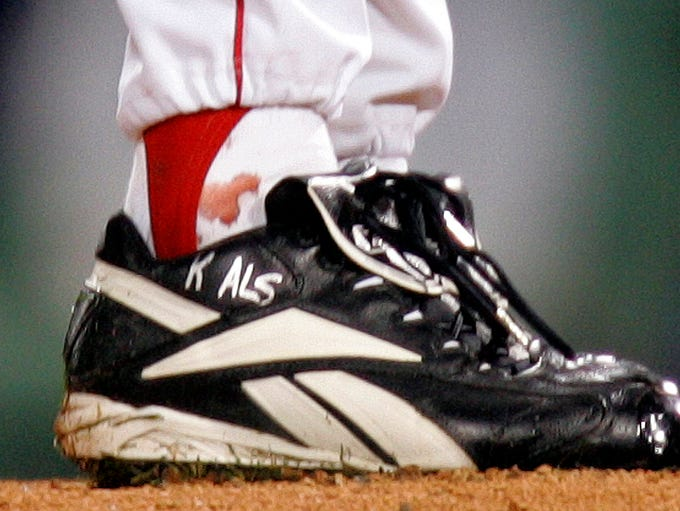 "Schilling's ""bloody sock"" in Game 6 of the 2004 ALCS"