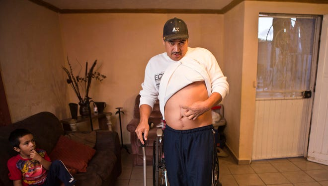 Jesus Castro Romo, who is an undocumented migrant, shows where he was was shot by a Border Patrol agent on Nov. 16, 2010. A federal judge ruled Friday, Feb. 6, 2015, that the U.S. must pay $500,000 in the shooting.