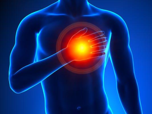 Heart Attack Male - Concept