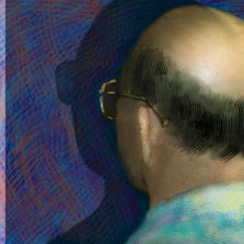 Men with male pattern baldness may face a higher risk of developing an aggressive type of prostate cancer than men with no balding, a new study suggests.