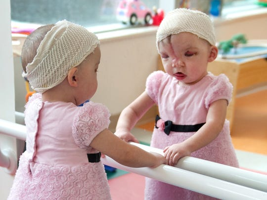 Violet Pietrok, 2, is undergoing skull procedures by a national specialist.