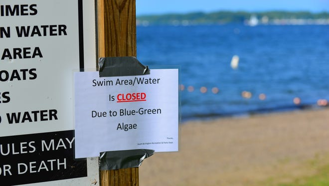 A sign at Red Rocks Park in South Burlington on Tuesday morning alerts would-be swimmers to a beach closure, due to potentially toxic cyanobacteria. By mid-afternoon, conditions were deemed safe by city officials.