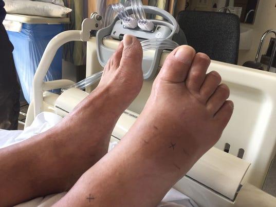 635629040597878961-Snake-bite--foot