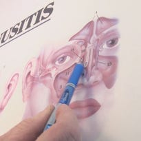 Sinusitis sufferers find lasting treatment