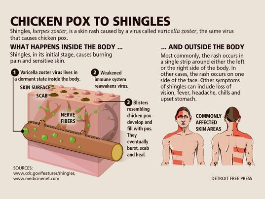 shingles rash picture