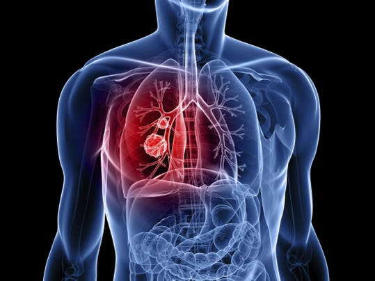 No. 1 cause of lung cancer is smoking