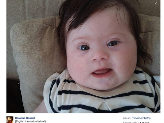 Mom's Facebook post on Down syndrome strikes chord