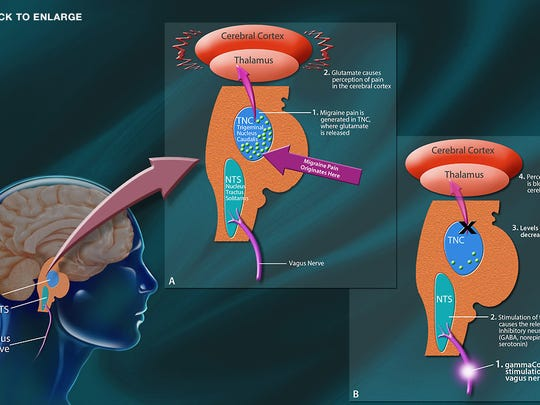 An illustration shows how the GammaCore device stimulates