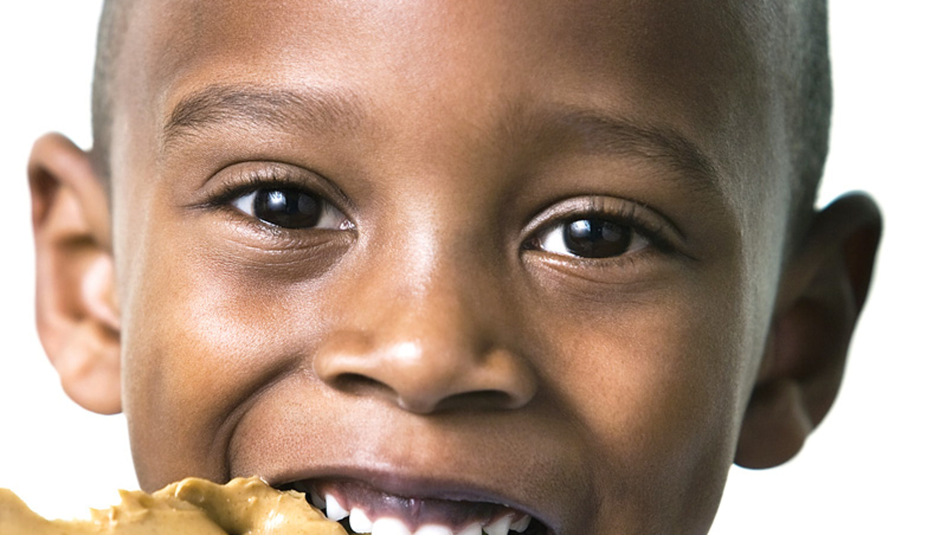 Can Food Allergies Be Prevented in Kids?