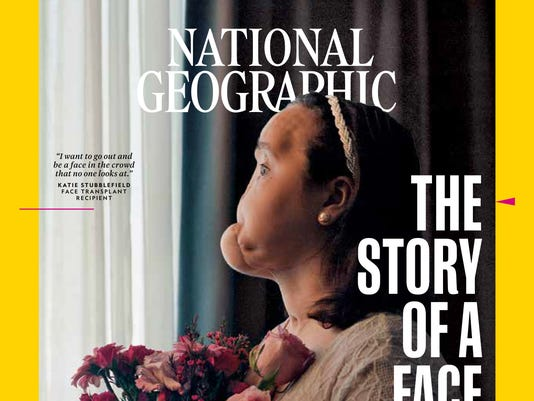 Youngest face transplant recipient shares story in National Geographic