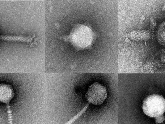 636377909339427033-080217-NSF-funding-story--BW-photo-viruses-800x450.jpg