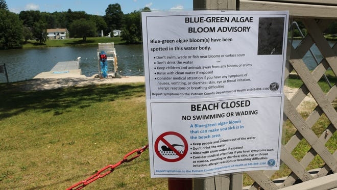 A sign is visible July 22, 2015 outside Beach 4 at Lake Carmel in Kent where blue-green algae has forced the Putnam County Department of Health to close its beaches.
