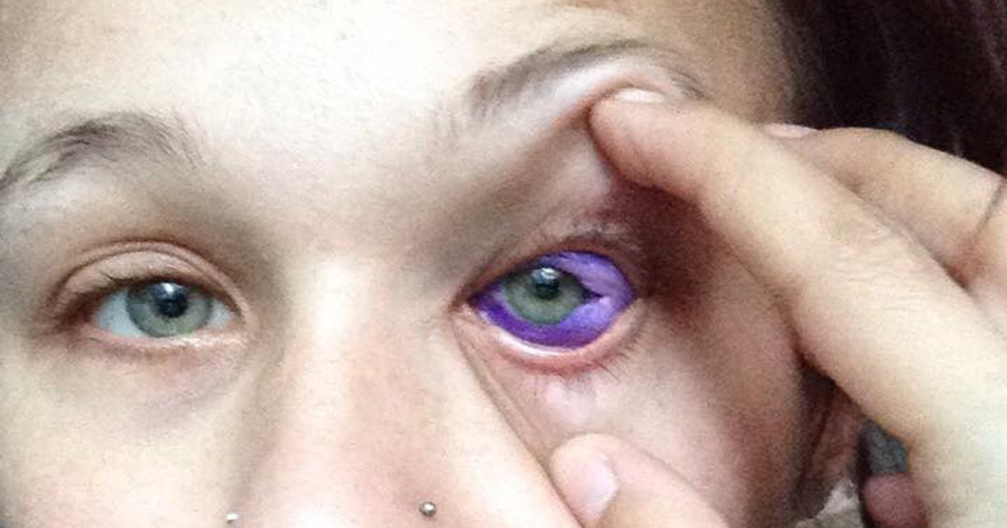 Sclera tattoo: Don't ink your eyeball  Just don't do it