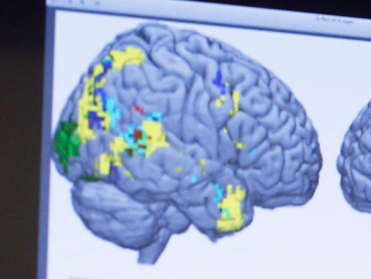 2015-01-09 Brain scan