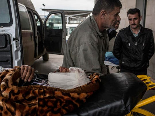 A Iraqi man wounded in a car bomb attack in the liberated district of Gogjali is seen at his arrival to a Hospital in Irbil, Iraq, Thursday, Dec. 22, 2016.