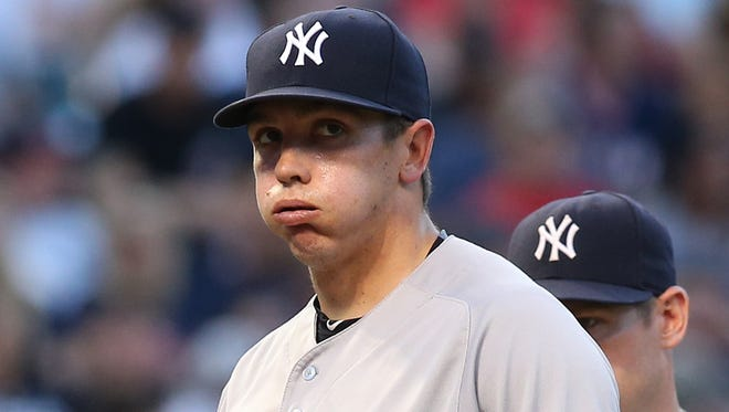 New York Yankees' Chad Green reacts as he is taken out of a baseball game in the fifth inning of a baseball game against the Cleveland Indians, Friday, July 8, 2016, in Cleveland.