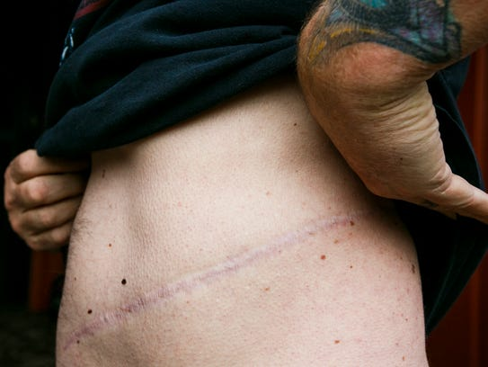 Karl Jensen shows the scar from donating one of his