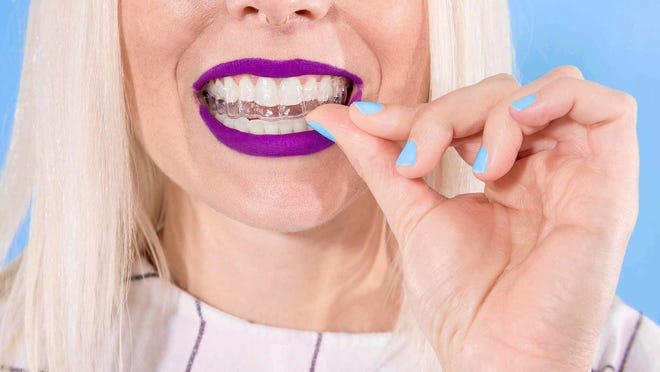 Clear SmileDirectClub aligners being inserted into a mouth.