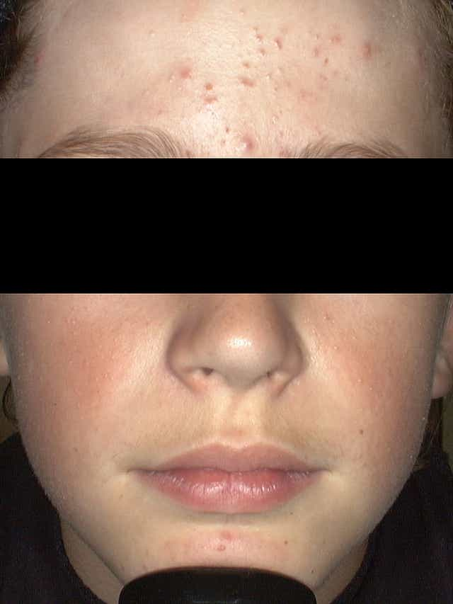 Kids Are Getting Acne Younger Than Ever Doctors Say