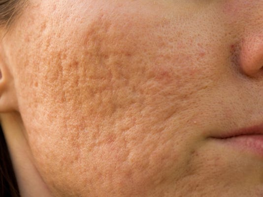 Treating acne scars that don't heal