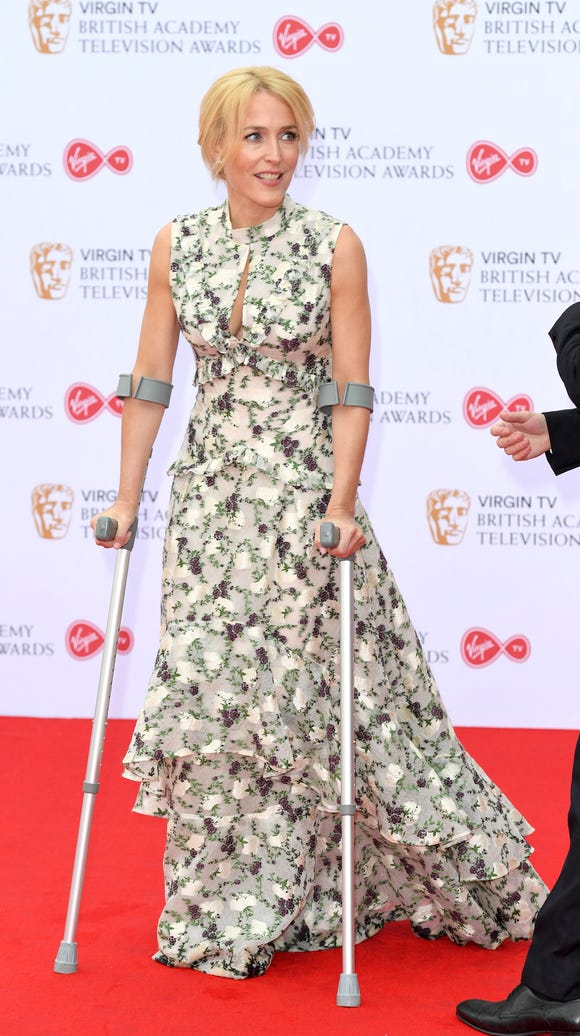 Leave it to Gillian Anderson to make crutches look