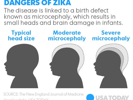 Microcephaly can be caused by Zika virus.