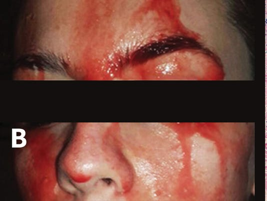 636444502009258349-Blood-sweating.jpg