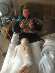 A day after undergoing surgery to repair his broken right leg, Zach Beadle was in a cast and already thinking about making it back for the baseball season.