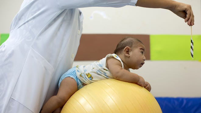 Beijamin Santos, who was born with microcephaly, undergoes physical therapy at a therapy treatment center in Joao Pessoa, Brazil.