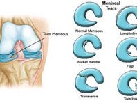 The type of meniscus tear can determine which treatment option is best for you