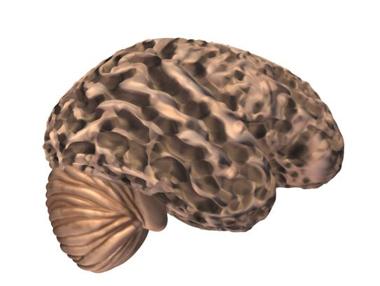 A brain of someone with advanced Alzheimer's.
