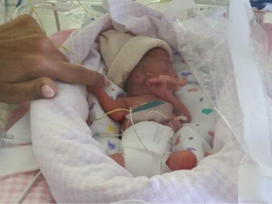 Natalie Kudelin, shortly after her birth.