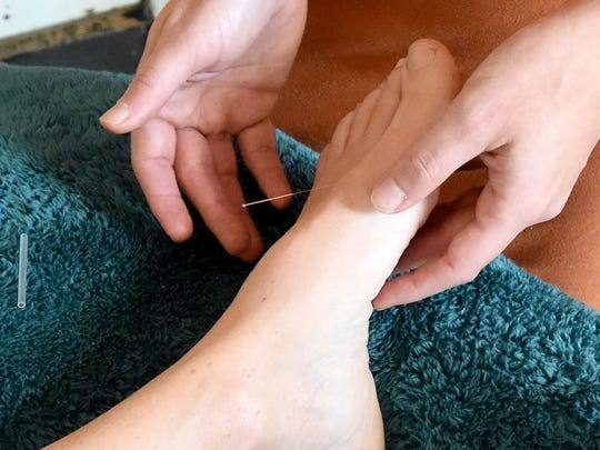 Emily Hanger of Taproot Acupuncture inserts an acupuncture