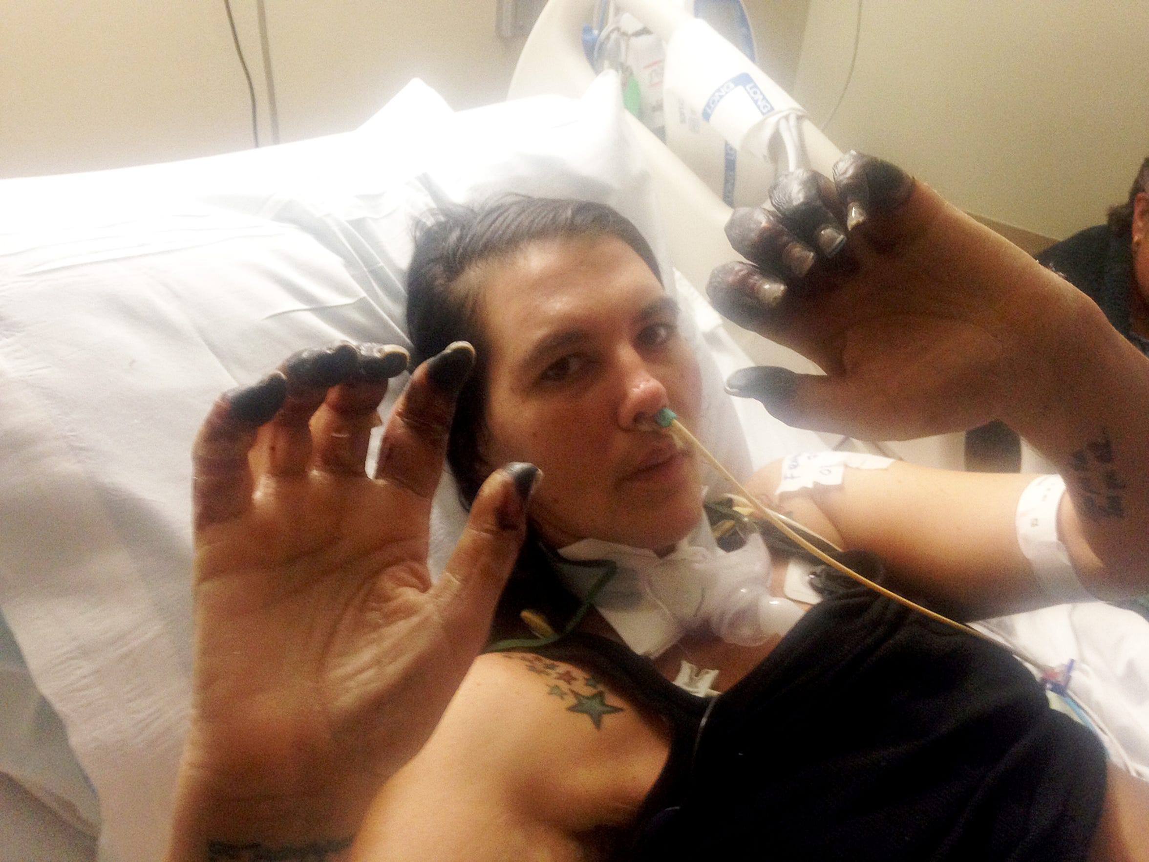 Cortney Small holds up her hands to show the necrotic