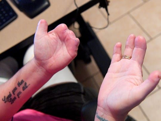 Cortney Small's has a partial thumb and no fingers on her left hand with three partial fingers and thumb on her right hand.
