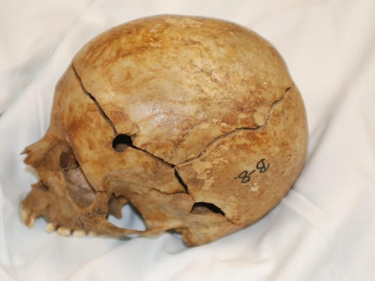 The entrance wound in the skull of mother, as photographed by the Vermont Chief Medical Examiner's Office in 2011.