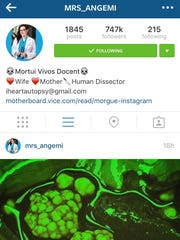 Nicole Angemi posts photos from the human body, like this filtered picture of gallstones, on her Instagram account.