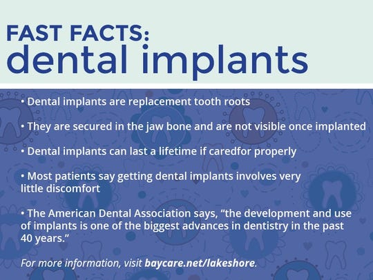 BayCare Clinic - Fast Facts: dental implants