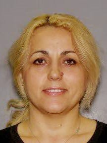 This booking photo provided by the Bronx District Attorney?s Office in New York shows Valbona Yzeiraj on Thursday, April 16, 2015. Yzeiraj was arraigned Thursday on charges she posed as a dentist when the real dentist was away and seriously injured patients after pulling their teeth, performing root canals on them and injecting their mouths, prosecutors said.