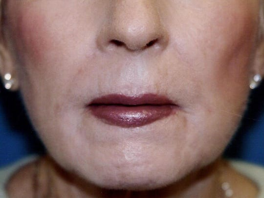 AFTER: A lip lift brings back a smoother, more youthful