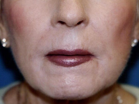 AFTER: A lip lift brings back a smoother, more youthful appearance.