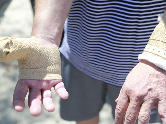 Steve Verschoor, 54, shows his bite wounds after a