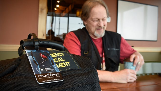Rex Veeder was the third recipient of the LVAD ventricular assist device at St. Cloud Hospital. He now carries a small bag of spare parts and batteries with him wherever he goes.